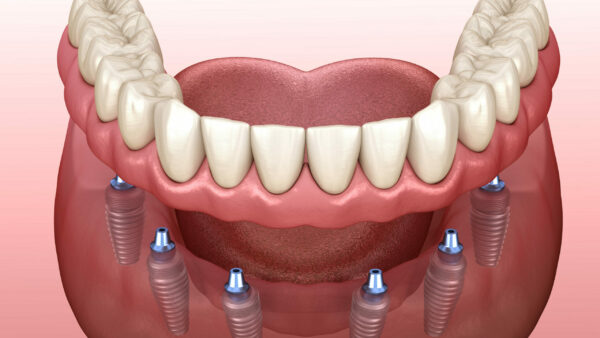 diagram showing implant supported dentures being put on