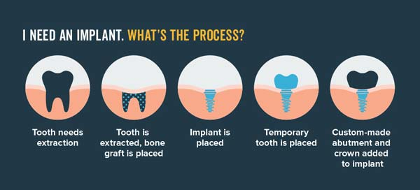 Implant Myths Holding Your Smile Back Mullins Sc